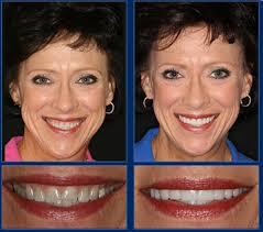 an austin cosmetic dentist creates life