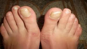 Hřebík Na Hrudníku Se Zčervená Typy Onemocnění Nehtů Na Nohou A