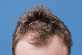 6 common hair loss causes in men man