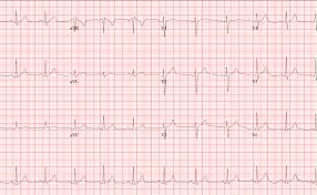 The Normal Ecg The Student Physiologist