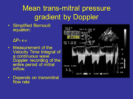 simplified bernoulli equation. 47 mean trans-mitral pressure gradient by doppler simplified bernoulli equation: equation l