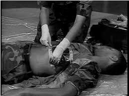 Αποτέλεσμα εικόνας για Αναπνοή - Αναισθησία Στο Ασθενοφόρο - Σταθεροποίηση Της Κυκλοφορίας - Αξιολόγηση του βαθμού αιμορραγικής καταπληξίας (Μέρος Πέμπτο)