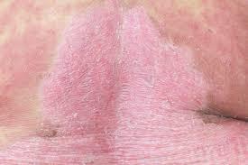 Atopic dermatitis - Genetics Home Reference - NIH