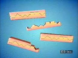 Polymerase Chain Reaction Definition Steps Britannica Com