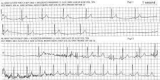 Ekg Heart Rate Chart 2019