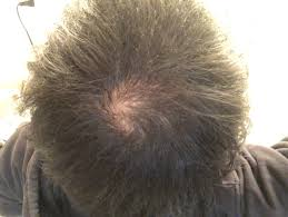解決方法アリ薄毛でも坊主にせずに自分の髪で好きな髪型を楽しむ方法