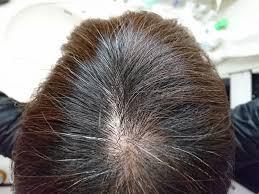 画像付き女性のつむじハゲ頭頂部ハゲの原因と改善法まとめ女性の
