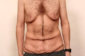 5 kg in 2, wochen abnehmen so gehts Gesunde, abnehmen