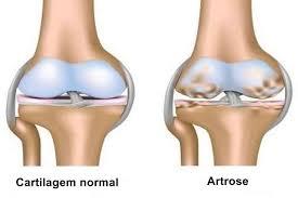 o que e artrose e quais os sintomas