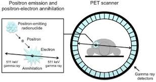 how a pet scan works the basics of positron emission tomography pet