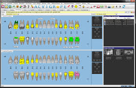 dental charting systems dental4windows professional products centaur software