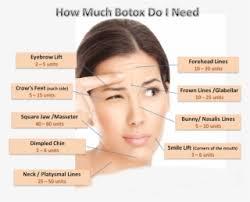 Botox Dosing Chart Face Transparent Png Transparent Face Transparent Png Image
