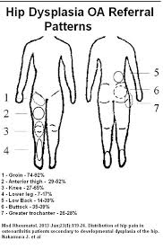 Pain Referral Patterns Best Hip Osteoarthritis Referral Patterns In Hip Dysplasia Pain Medical
