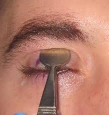 Formulir kontak nama email * pesan * Steps A Denver Eyelid Surgeon Does To Remove A Stye Or Chalazion