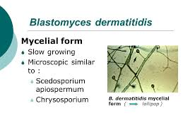mycelial form laboratory identification of dimorphic fungi ppt video online download