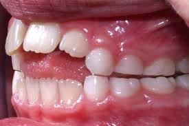 Image result for thumb habit baby teeth