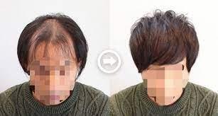 頭 頂部 はげ 髪型