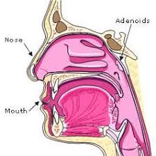 Adenoidectomy Child