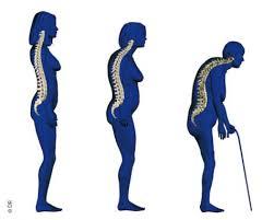 Osteoporose gevolgen