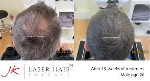 cold laser hair restoration