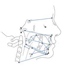 Resultado de imagem para osso iode cefalometria