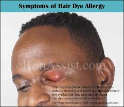 How long does hair dye allergy last and how to avoid getting allergy ...