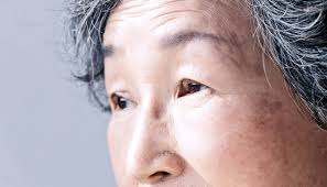 Pics Of Eyes Simple Eye Exam May Detect Alzheimers Disease Early Futurity