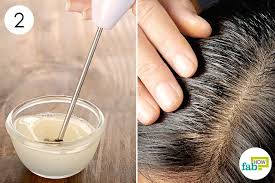 mix well and massage it into your hair to get rid of dandruff