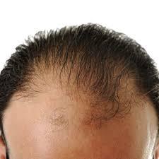 does emu oil regrow hairline regrow hair