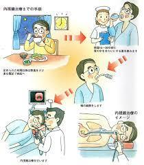 胃 洗浄 方法