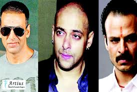successful hair transplant of indian