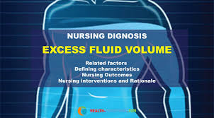 Excess Fluid Volume - Nursing Diagnosis & Care Plan - Health Conditions