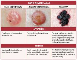 Skin Cancer Signs Self Checks May Help You Avoid Deadly