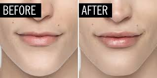 lip injections and fillers