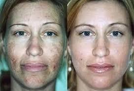 Peeling quimico tira manchas de acne