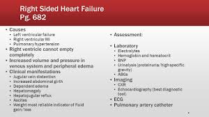 Right Vs Left Sided Heart Failure Chart Introduction To Heart Failure Hypertension Associated