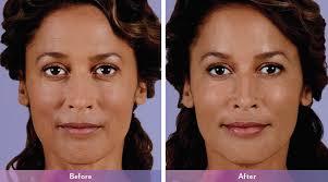Lip Filler Chart Skin Dermal Fillers University Of Utah Health