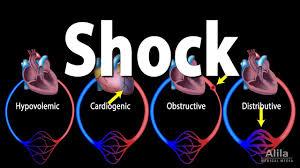Shock Pathology Of Different Types Animation