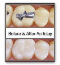Dental Inlay Dentist Inlays And Onlays In Port St Lucie Florida