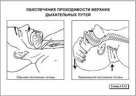 Этапы сердечно легочной реанимации Студопедия 3 Если рот пострадавшего закрыт и его подбородок отвисает мышцы шеи расслаблены необходимо выдвинуть нижнюю челюсть вперед переводя руку из под шеи