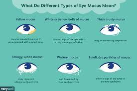 Eye Mucus - Discharge - Eye Boogers