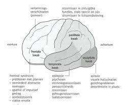 Epilepsie na beroerte