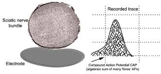background biphasic extracellular recording both the classic intracellular action potential and the compound action potential are biphasic in other words they have both positive and negative