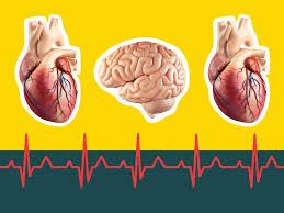 Cardiac Arrest Vs Heart Attack Vs Stroke Signs Symptoms