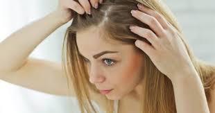 Problemli Saç Derisi İçin Bakım ve Tedavi Yöntemleri ! - KizlarSoruyor