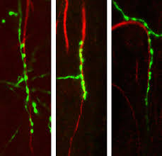 scientists discover 2 proteins that control chandelier cell architecture