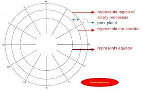 Fundus Chart Empty Template For Fundus Drawing Dibujos Y Retina