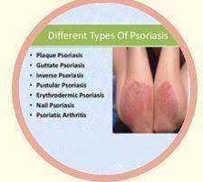 Inverse Psoriasis Treatment In Kodambakkam Chennai Cnr Herbs Id