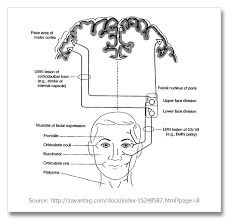 what are the differences between upper motor and lower motor neuron type of nerve palsy
