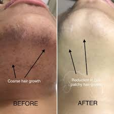 laser hair removal session